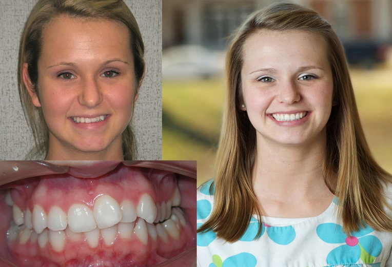 Patients before and after treatment by Chattanooga Orthodontist at Sawrie Orthodontics.