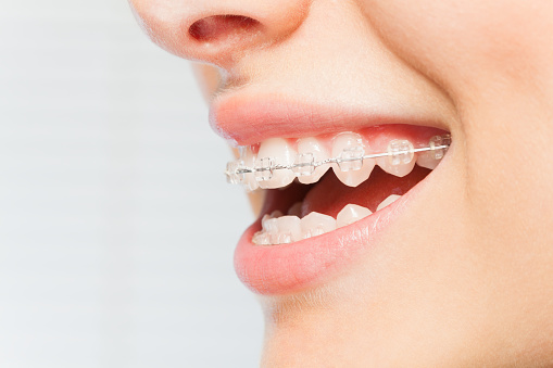 Will Wearing Braces Leave Marks on Your Teeth?