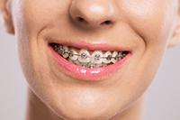 Summer Foods to Eat – And Avoid – With Braces