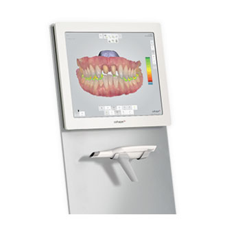 A TRIOS digital impression scanner used by orthodonitst in Chattanooga, TN.