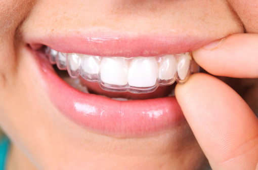 Caring for your Retainer Effectively: Best Practices